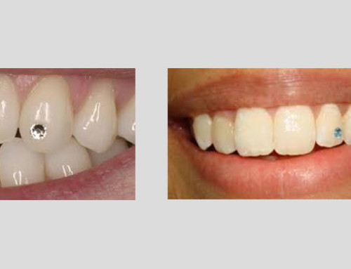 Diş Üstü Kıymetli Kıymetsiz Taş Uygulaması